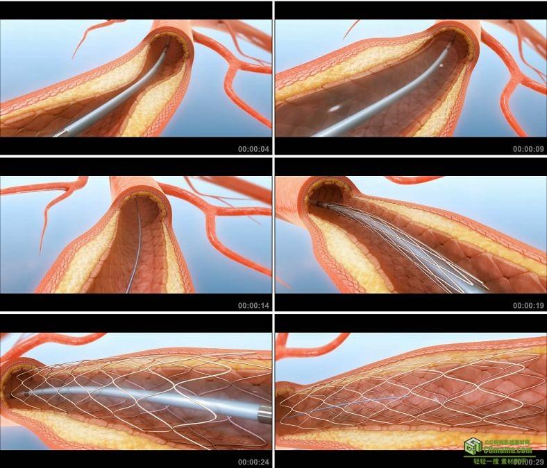 YC0968-血管扩张动画医疗手术小高清视频素材